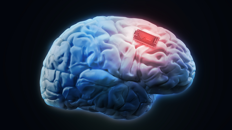 A picture of a brain implant